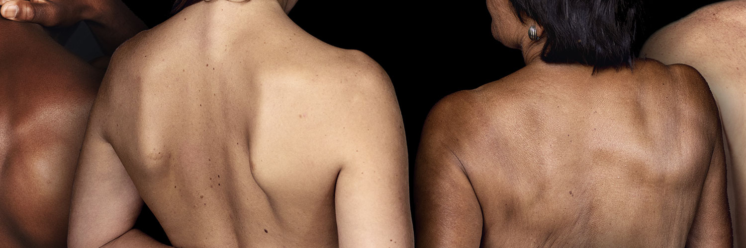 Close-up of two people showing their back with skin disorders to introduce dermatology therapy areas
