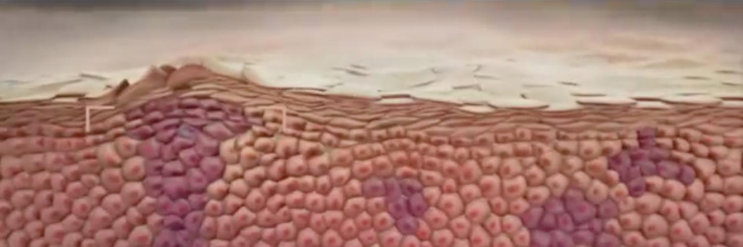 Close-up of the layers of the epidermis to introduce dermatology training